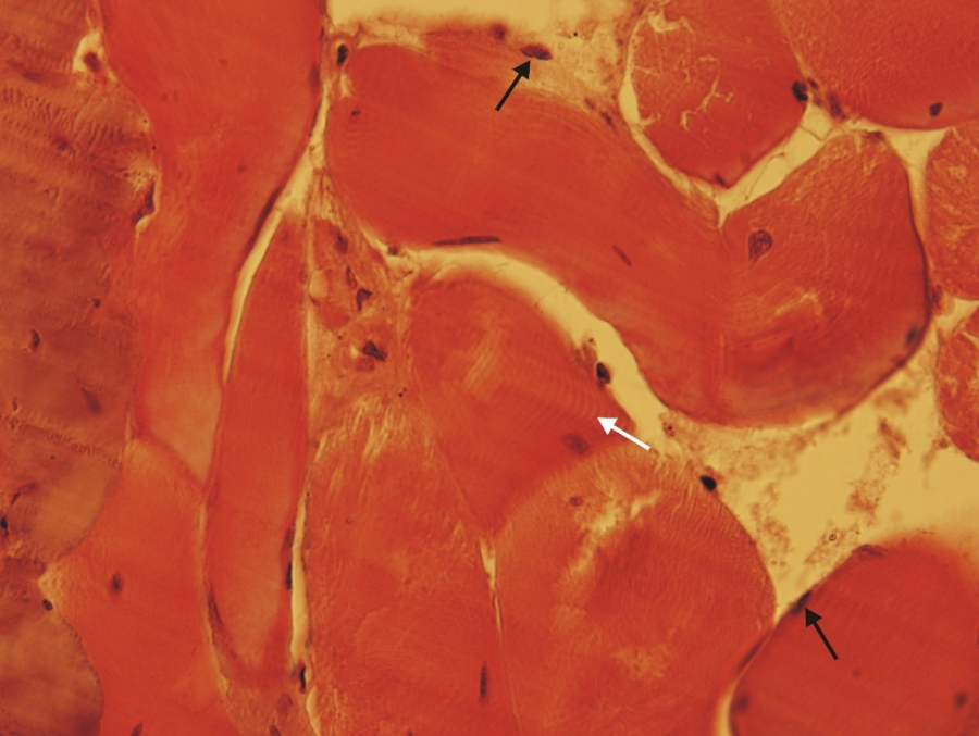 dzst kötőszövet diffúz betegségei vagy kollagenózis
