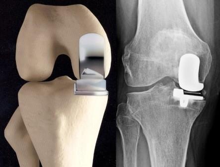 artrózis a térdben, hogyan kell kezelni)