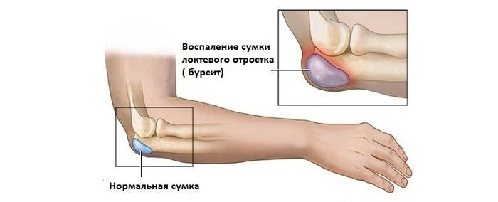 közös kezelés dicloberl-lel)