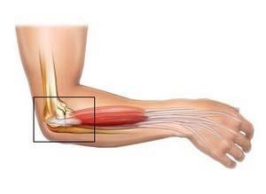 a könyökízület külső epicondylitisének tünetei és kezelése váll sérülés hideg