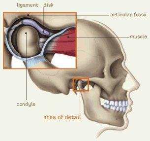 a temporomandibularis ízületi gyulladás)
