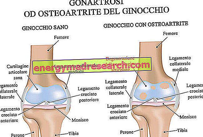 arthrosis vagy gonarthrosis kezelés