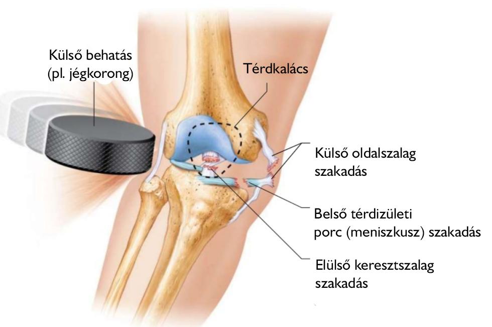 a térdízület belső meniszkuszának károsodása)