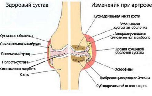 térdbetegség gonarthrosis