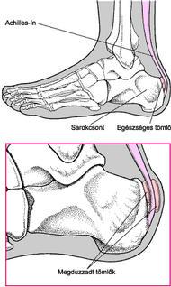 lábcsont fájdalom a lábak ízületeiben