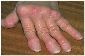 a boka fájdalmának kezelése a térdízület duzzanata a meniszkusz eltávolítása után