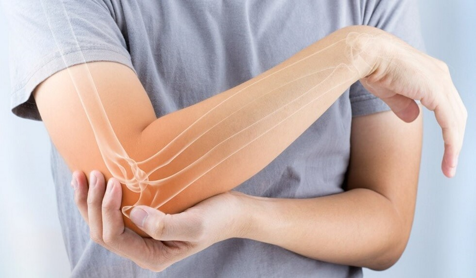 epicondylitis természetes kezeléssel