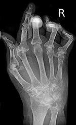 mit fáj a csuklóízület féreg tinktúra ízületi fájdalmak kezelésére