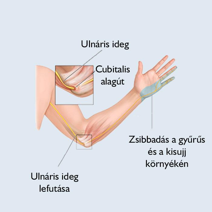 A könyökízület gyulladása. A könyökízületi bursitis gyulladása.