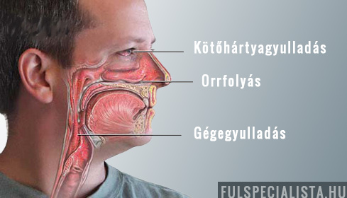 arcgyulladás jelei)