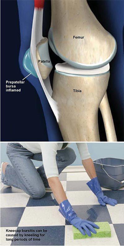 Sprainek és a csukló elmozdulása