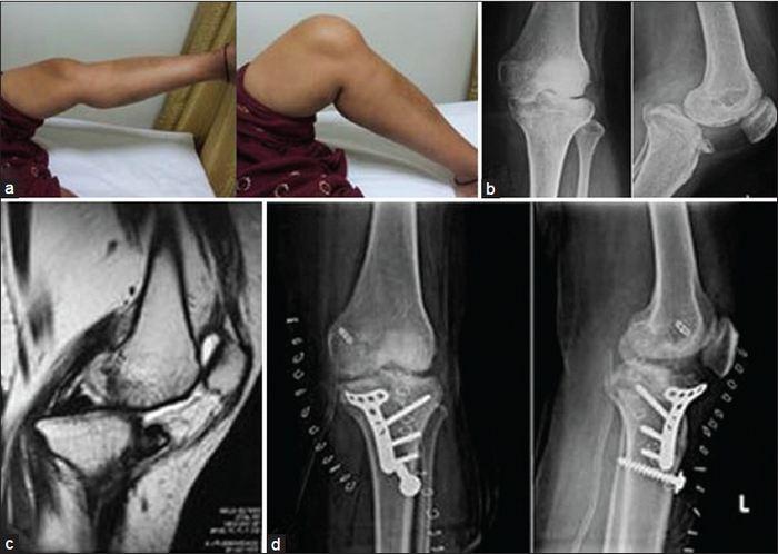 az alsó végtagok ízületeinek sérülése a sportolókban)