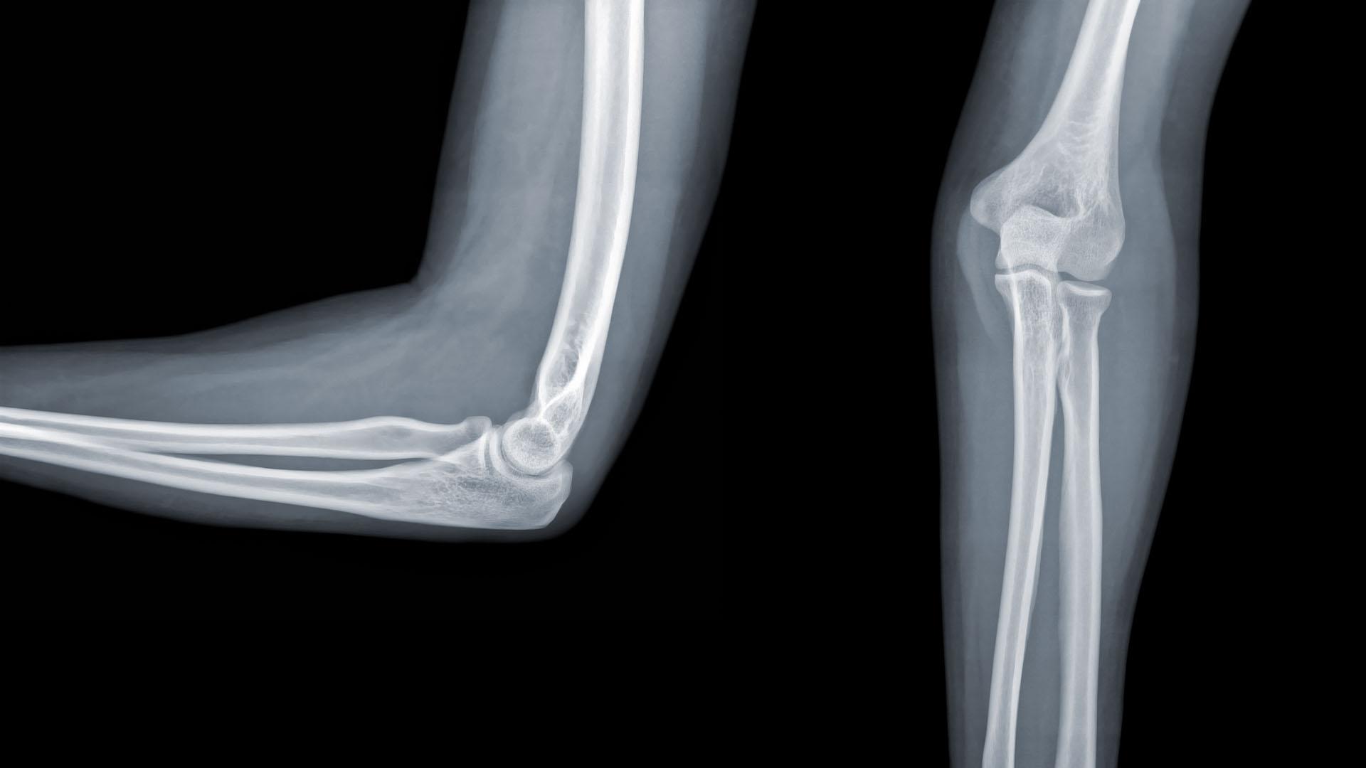 csukló fájdalom, mint kezelni milyen betegség a csípőízület artrózisa