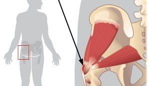 miért fáj a csípőízület