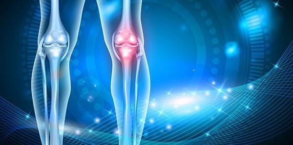 a térd etiológiájának patogenezisében előforduló artrosis