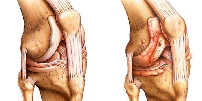 kenőcs térdfájdalmakról