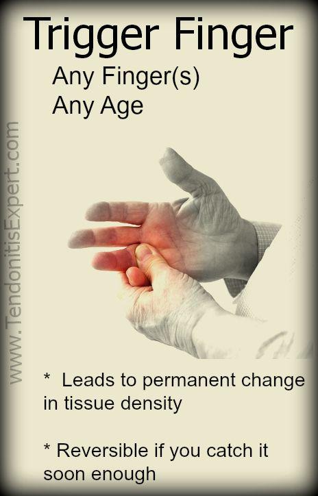 a rheumatoid arthritis 2. ujjának kalapácsváltása