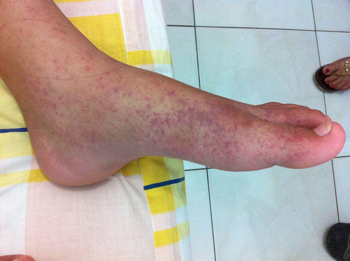 fertőzés ízületi fájdalom tüneteivel)