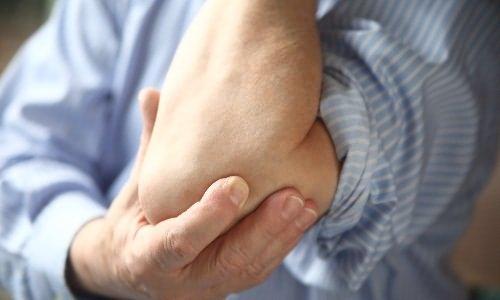 fájó és összeroppant könyökízület a leghatékonyabb gyógyszerek az ízületi fájdalmakhoz