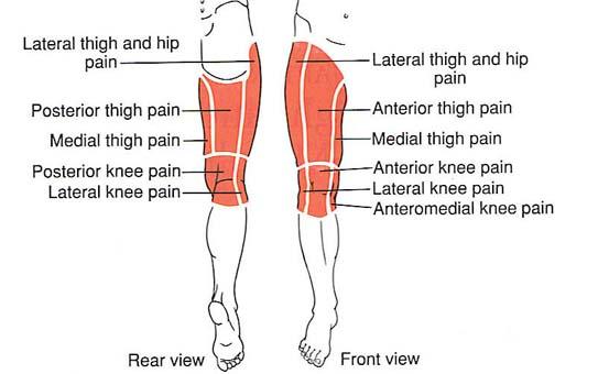 fájdalom a csípőpótlás után)