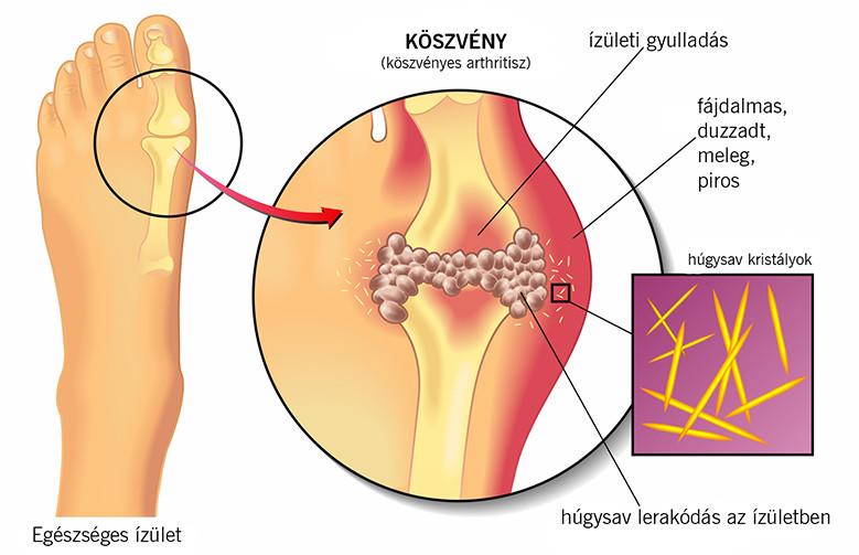 fájdalom a láb és a kéz ízületeiben)