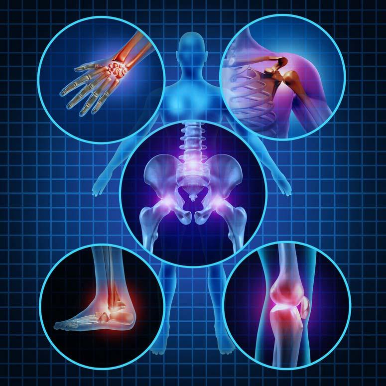 fájnak a lábak és az oldalak ízületei a térdízület artrózisával járhatunk