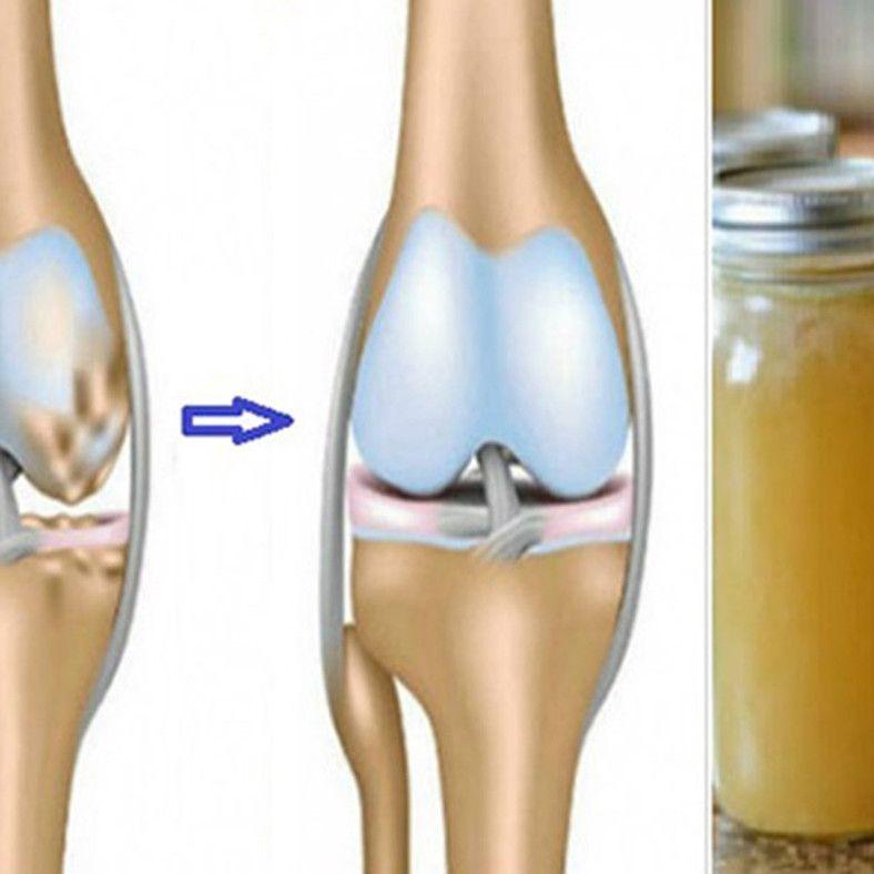 ghee ízületek kezelése fájdalom és gyulladás a könyökízületben