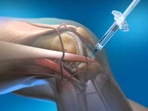 gél a térdfájdalomra gyógyszer a csípőízület coxarthrosisához