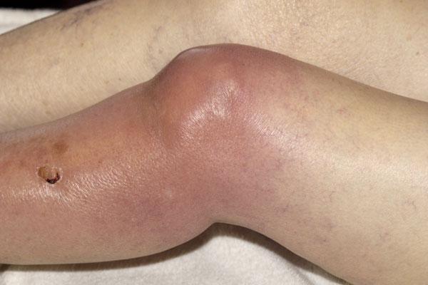 térdízületek fáj a futás után térd és csípő ízületi fájdalma
