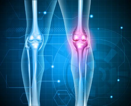 hogyan kezeljük a térd artritisz
