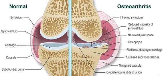 hogyan kezeljük az ízületi gyulladáscsökkentőket