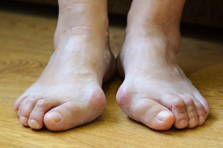 hogyan lehet kezelni a lábujj egy ízületét