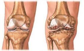 hogyan lehet megállítani a térd artrózisát)