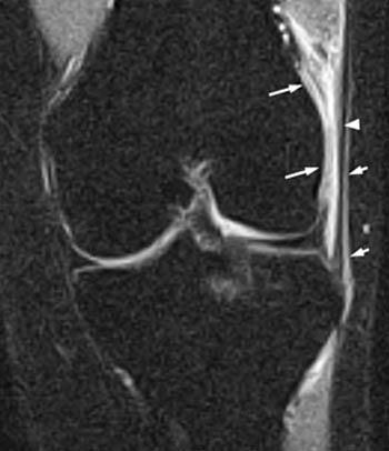 iliotibial band syndrome radiopaedia ízületi infúzió