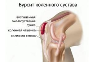 kenőcs térdfájdalmakról)