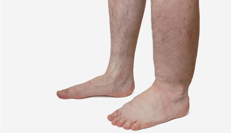 láb bokaízület gyulladása