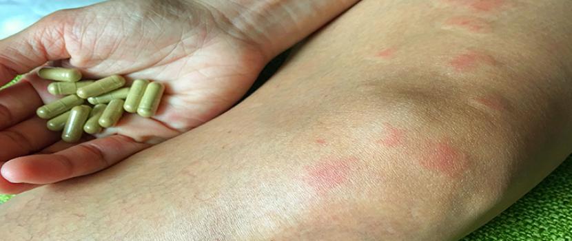 lupus ízületi betegség)