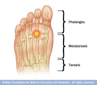 metatarsalis arthritis tünetei