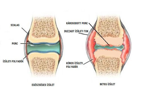ízületek boka fájdalma és oka együttes kezelés rozskenyérrel