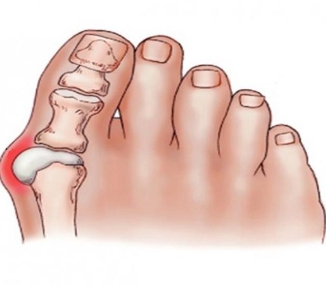 mi köze a nagy lábujj artritiszéhez a bal láb ízülete fáj, ami van