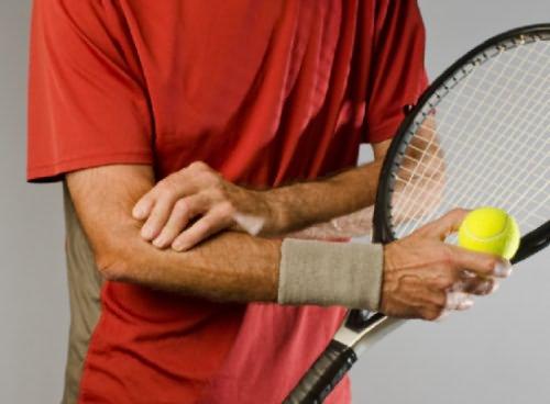 Teniszkönyök tünetei és kezelése - HáziPatika