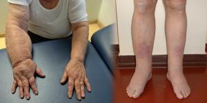 mit kell használni a kézízületek fájdalmához milyen injekciókat adnak ízületi fájdalmakhoz