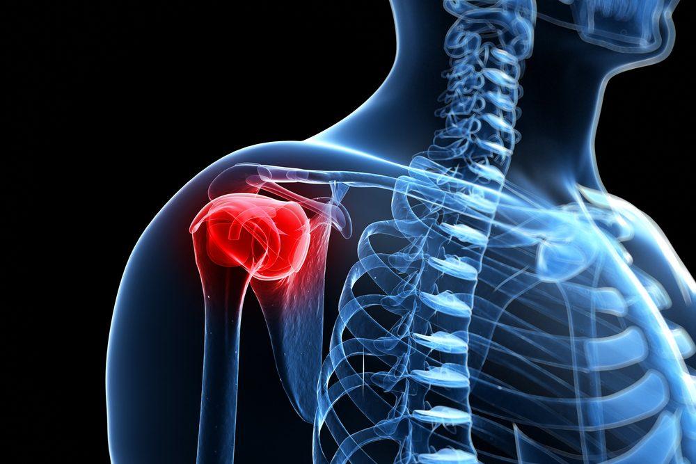 nyak váll fájdalom kezelése)