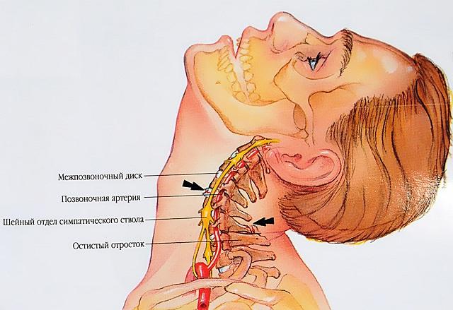 nyaki osteochondrosis és a vállízületek fájdalma