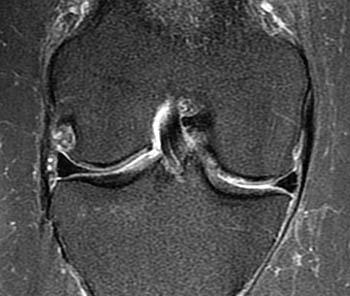 osteoarthritis knee mri)
