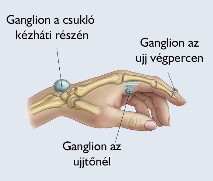 petefészek csont és ízületi kenőcs)