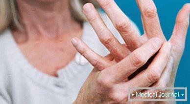 piros és fájó ízület az ujján)