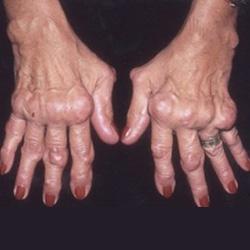 rheumatoid arthritis kézkezelésben fájdalom a jobb vállízületben és az izmokban