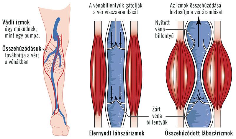 súlyos fájdalom a lábakban artrózisos kezeléssel