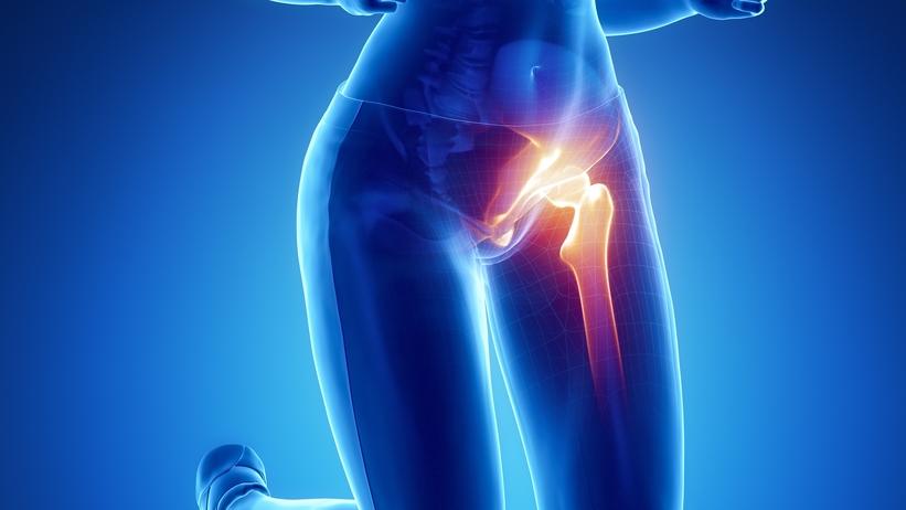 terápiás módszerek a csípőízület kezelésére